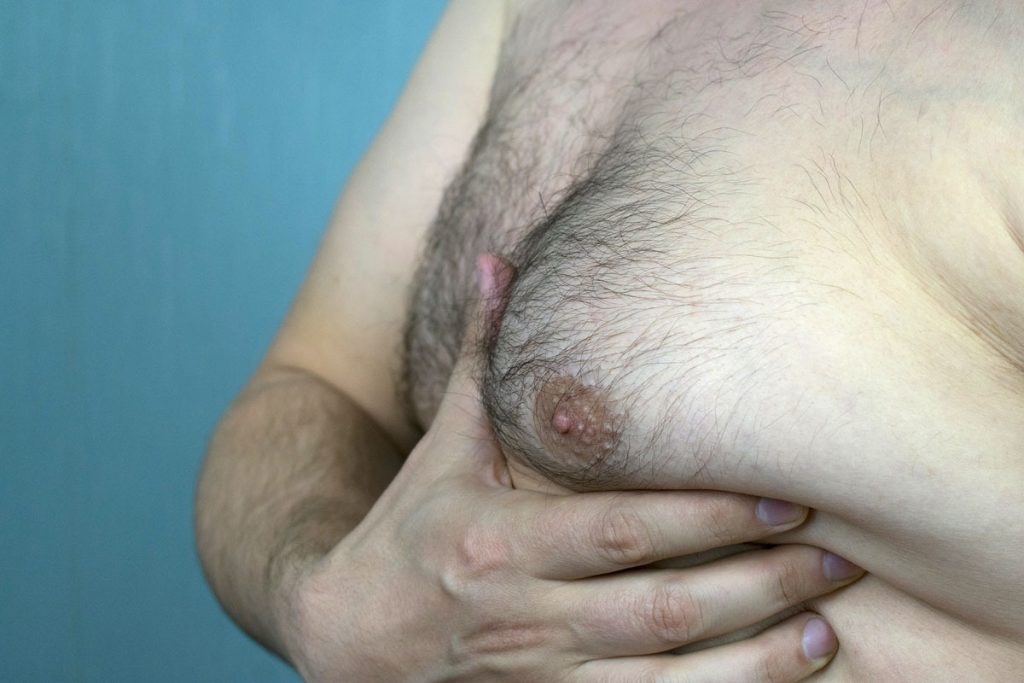 male breast before male breast reduction