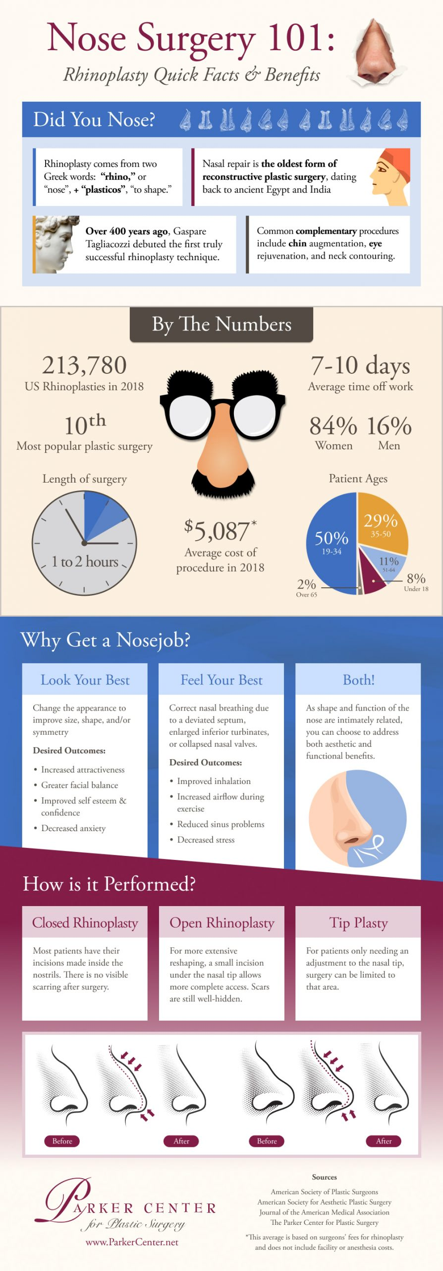 Detailed infographic about nose surgery/rhinoplasty