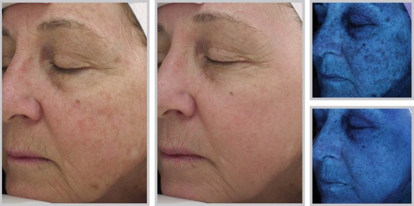 Woman\'s face before and after Halo fractional laser treatment