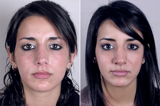 Front view of young female before and after rhinoplasty