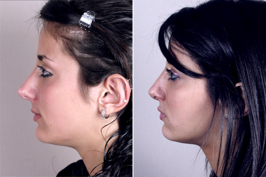 Side view of young female before and after rhinoplasty