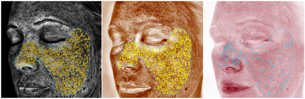 Results from VISIA complexion analysis