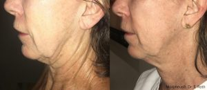 Side view of woman\'s neck and jawline before and after Morpheus8