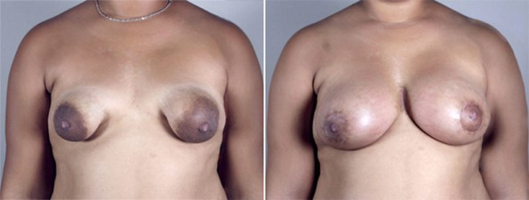 Front view of woman\'s chest before and after tubular breast surgery
