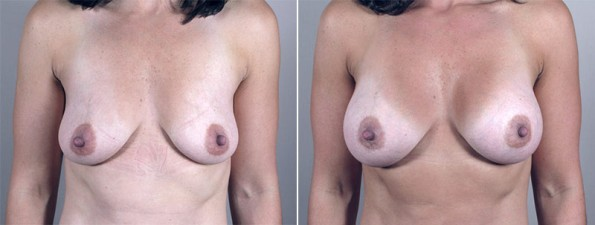 New Jersey Before & After Breast Augmentation