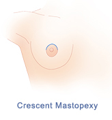 Crescent mastopexy incision pattern