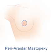 Breast Lift Incision for Peri-Areolar Mastopexy