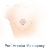 Periareolar mastopexy incision pattern