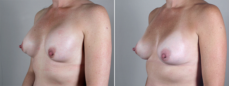 Side view of woman\'s chest before and after breast implant revision surgery