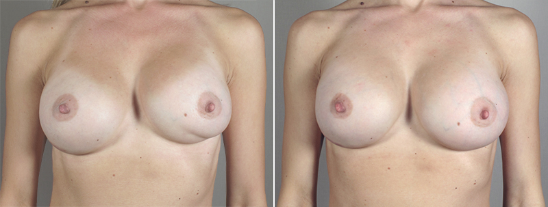 New Jersey Breast Revision