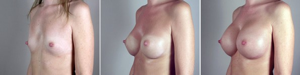 Side view of woman\'s chest before breast augmentation, with unsatisfactory result, and after revision surgery