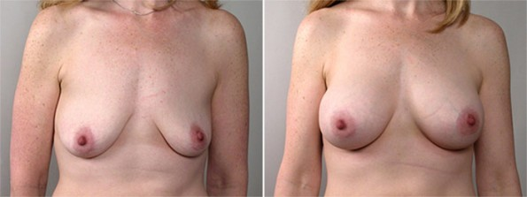 Front view of woman\'s chest before and after breast lift surgery