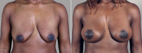 New Jersey Before & After Peri-areolar Mastopexy with Implants