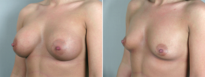 New Jersey Before & After: Breast Implant Removal (Explantation)