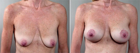 Front view of woman\'s chest before and after breast lift