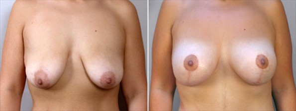 New Jersey Before & After Vertical Mastopexy with Implants