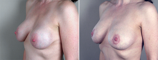 New Jersey Before & After: New Silicone Implants Placed Submuscularly
