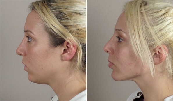 New Jersey Chin Implant with Neck Contouring