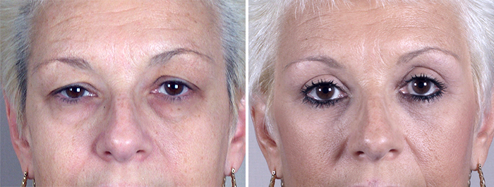 New Jersey Upper & Lower Eyelid Lift