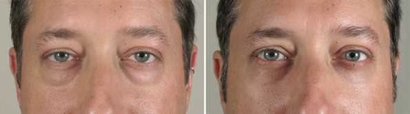 Male patient before and after lower blepharoplasty