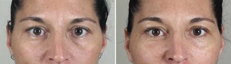 New Jersey Eyelid Surgery