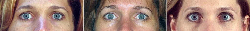 Lower Eyelid Surgery Results Age Naturally with You