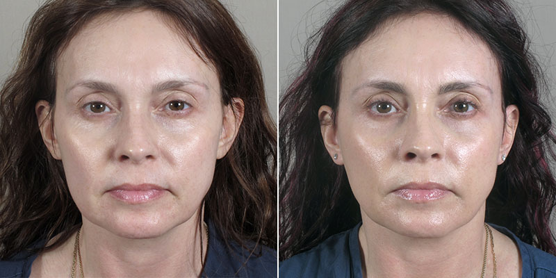 New Jersey Before & After: Mini-Facelift & Fat Injections