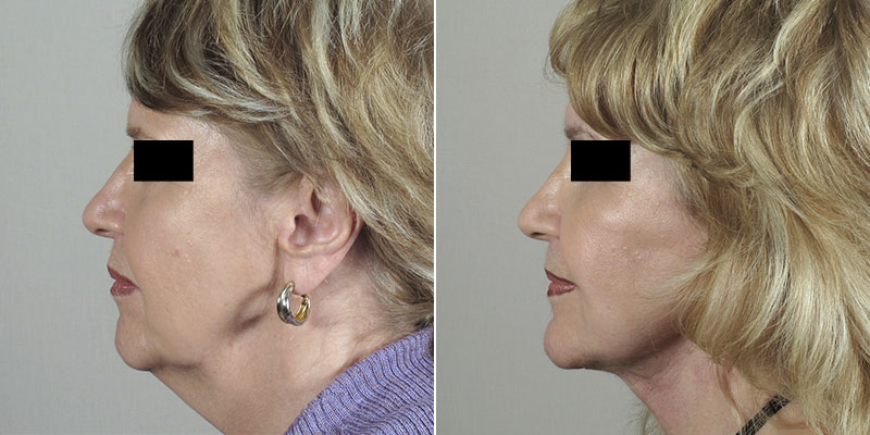 Facelift and Neck Lift New Jersey Before and After