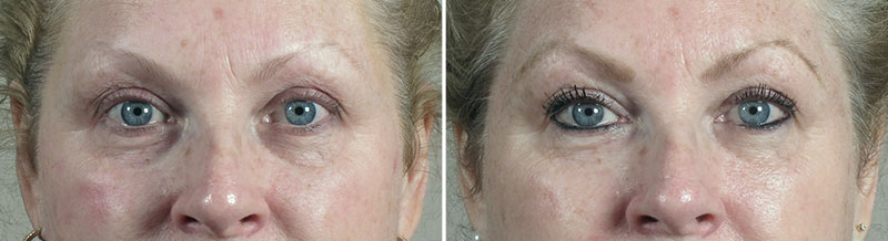 Before & After Halo Hybrid Fractional