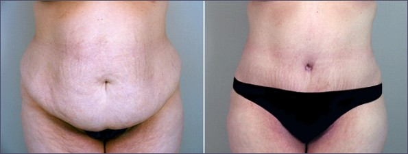 New Jersey Lipoabdominoplasty