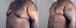Before & After: Circumvertical Chest Lift