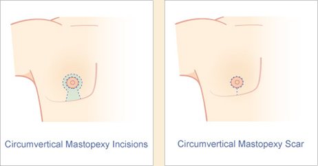 Male circumvertical mastopexy incision and scar