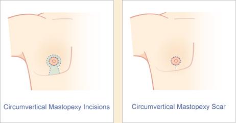 Circumvertical Mastopexy Incision Diagram