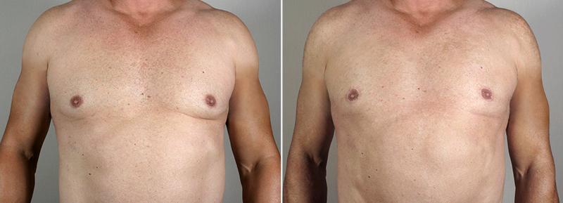 New Jersey Gynecomastia Reduction