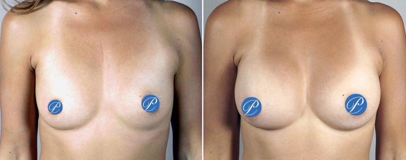 Breast Augmentation to Correct Asymmetry
