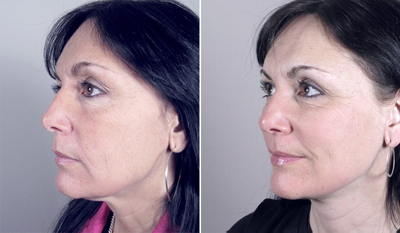 New Jersey Before & After: Neck Lift