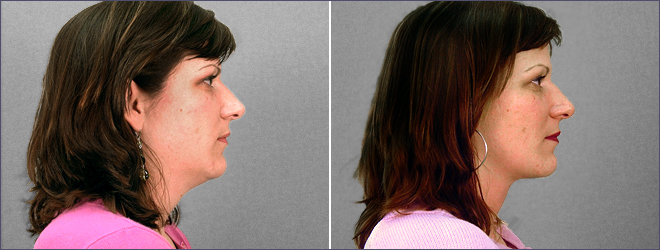 Neck Liposuction New Jersey Before and After
