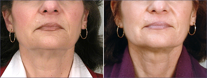 Neck Lift New Jersey Before and After