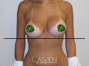 Before Aspen Ultrasound Capsular Contracture Treatment
