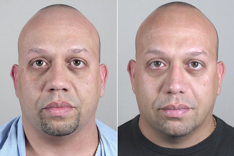 Front view of man before and after rhinoplasty with chin implant