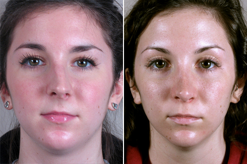 Front view of young woman before and after rhinoplasty