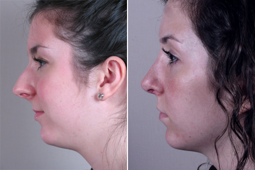 Side view of young woman before and after rhinoplasty