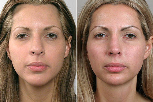 Front view of woman before and after rhinoplasty