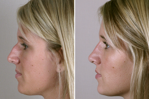Side view of woman before and after rhinoplasty
