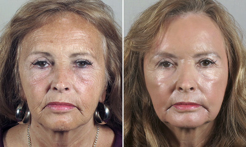 Chemical Peel New Jersey Image