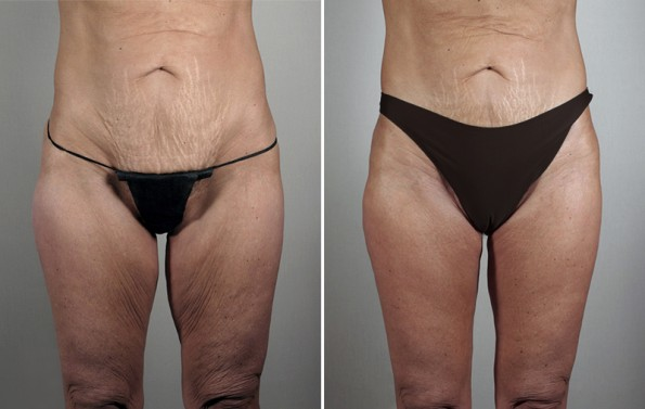 Before and After Thigh lift by Dr. Parker