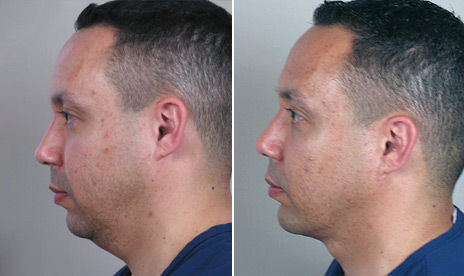 Male neck liposuction