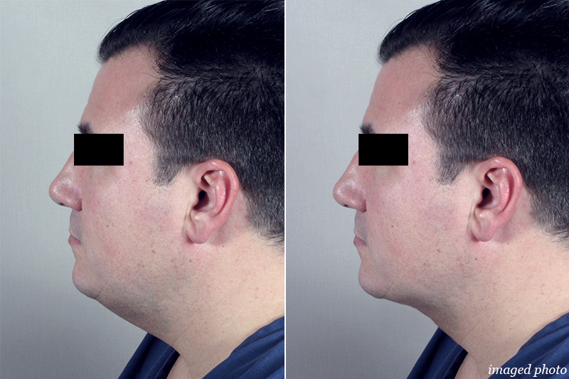 Male computer imaging for neck contouring