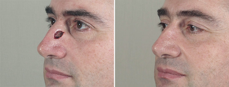 Man\'s face before and after skin cancer repair on his nose