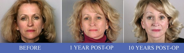 Front view of of female facelift patient before, 1 year after, and 10 years after surgery